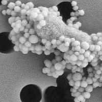 野生动物的脾脏微生物随着蜱传疾病而改变