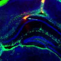 植入大脑的电子设备可以阻止癫痫发作
