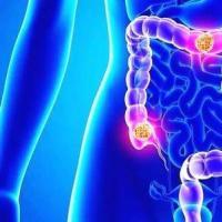 研究人员确定大肠癌的新治疗靶标
